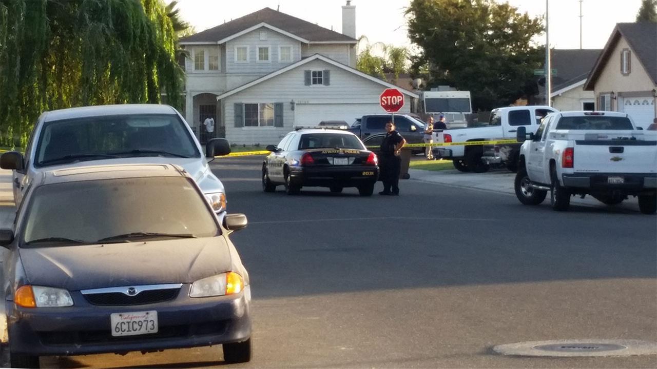 Deputy Shot, Suspect Killed In California