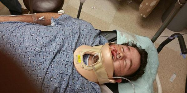 Teen Beaten After Supporting 'Blue Lives Matter' Online