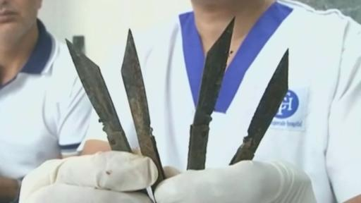 India Police Officer Had 'Uncontrollable Urge' To Eat 40 Knives