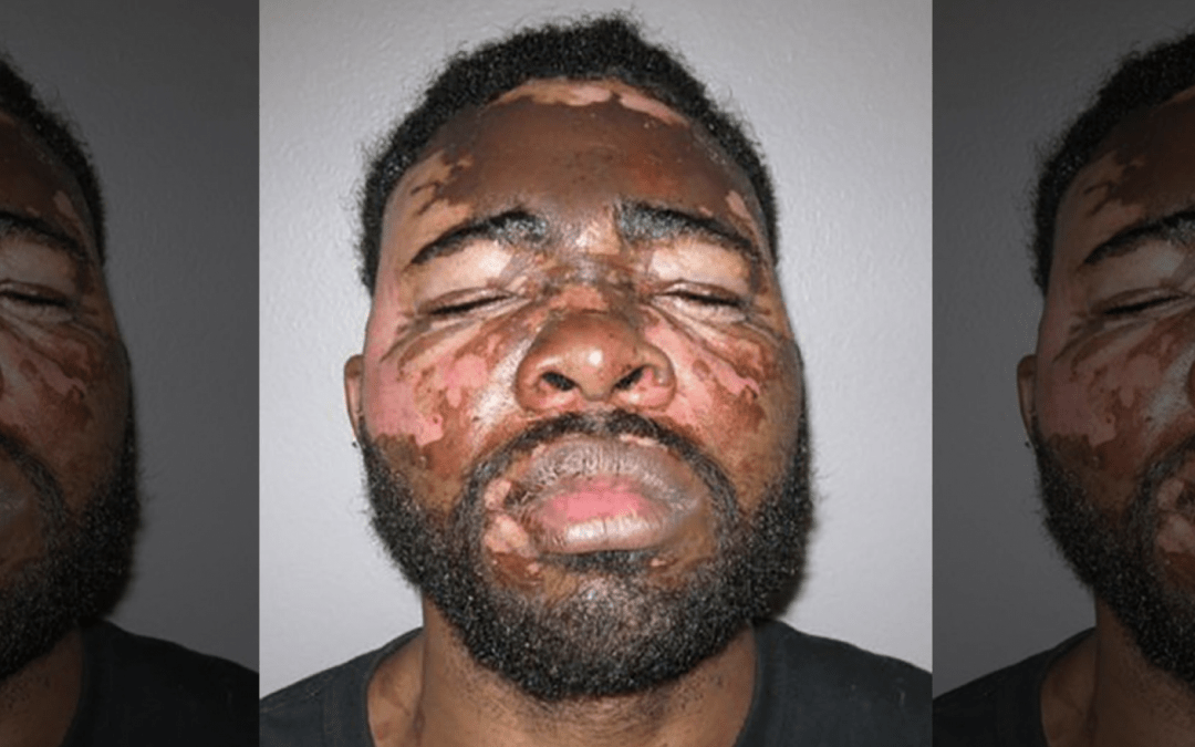 Woman tosses hot grease on face of armed intruder